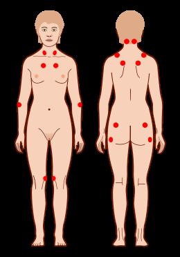 fibromyalgie3